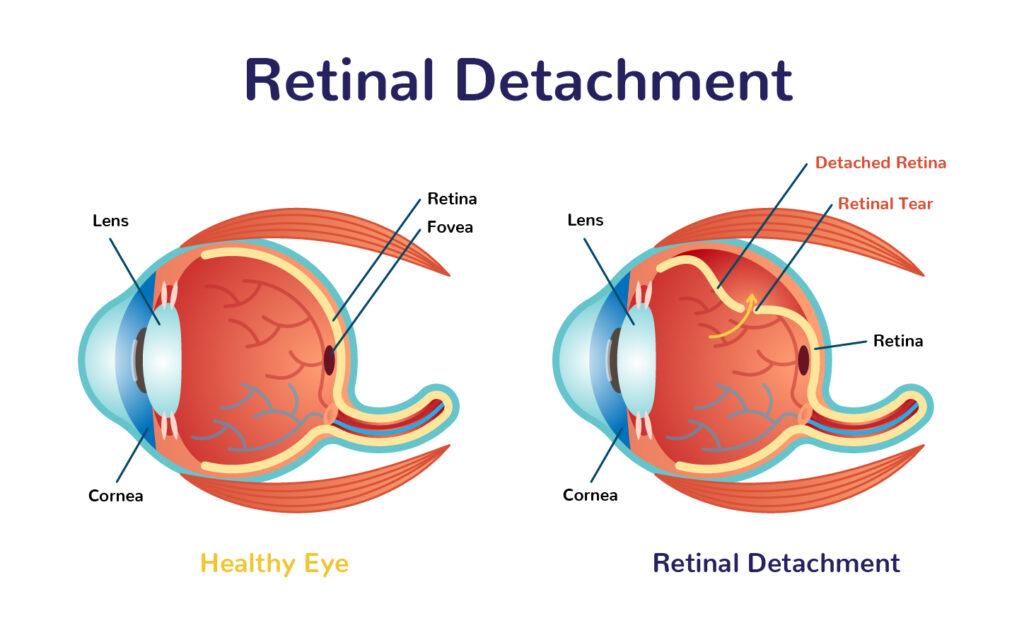 Retina detachment in vikhroli